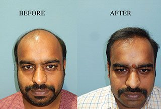 best hair transplant result