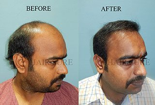 Results of hair clinic in hyderabad