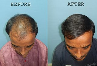 advanced hair clinic results