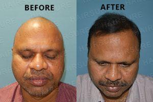 Advanced Hair Clinic Results