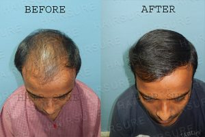 Advanced Hair Transplant Clinic Results
