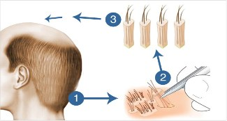 http://www.hairsure.in/fue-hair-transplant-in-hyderabad/