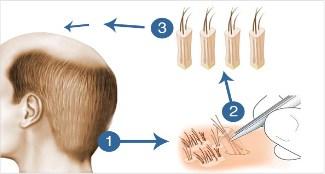 http://www.hairsure.in/fue-hair-transplant-in-hyderabad/