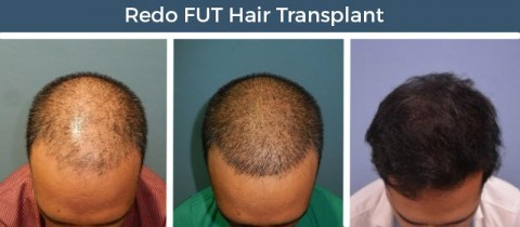 Remarkable ways to recover from failed Hair Transplant Surgery