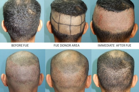 Which Is Better: Ultimate FUT or Revolutionary FUE?