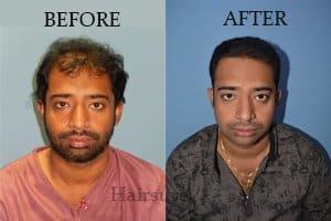 Advanced Hair Treatment Results