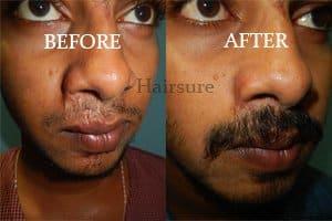 Best Hair Clinic in Hyderabad