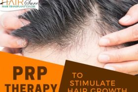 Platelet Rich Plasma Therapy (PRP) – To Stimulate Hair Growth
