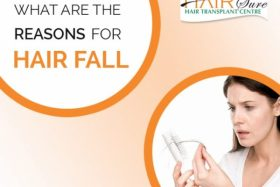 What are the reasons for hair fall?