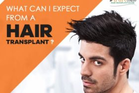 What can I expect from a hair transplant?