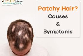Alopecia Areata – A Guide to Symptoms and Causes