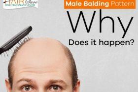 Male balding pattern – why does it happen