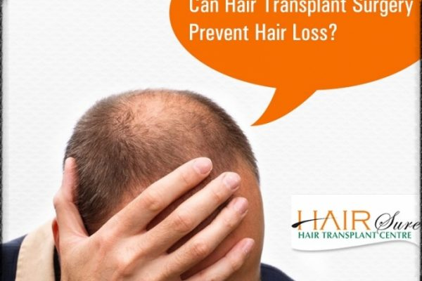 Does Hair Transplant Prevent Hair Loss?