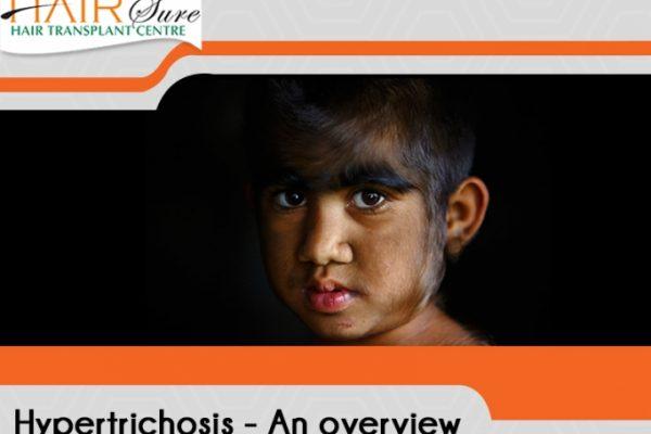Understanding Hypertrichosis, The Werewolf Syndrome