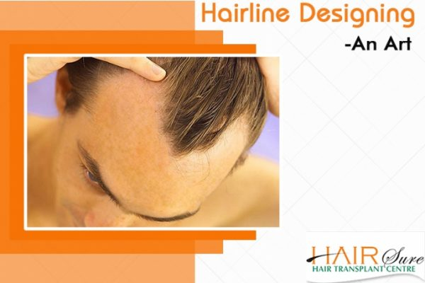 Importance of Hairline for Hair Loss Treatment