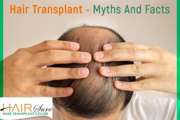 Hair Transplant Surgery  Myths and Facts