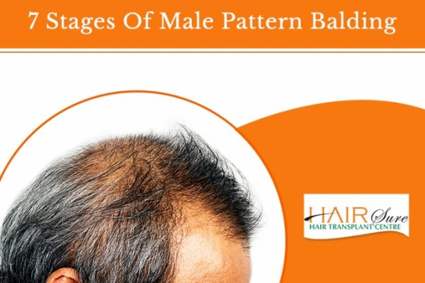 7 Stages Of Male Pattern Balding