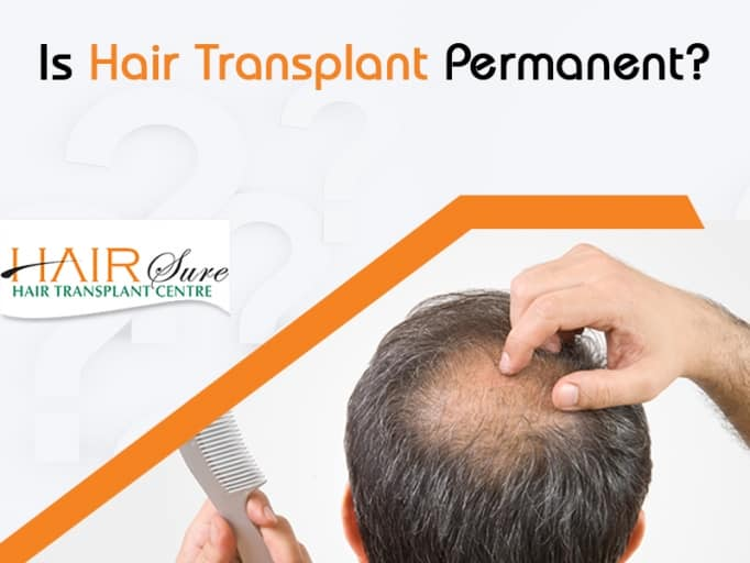 Is Hair Transplant Permanent?
