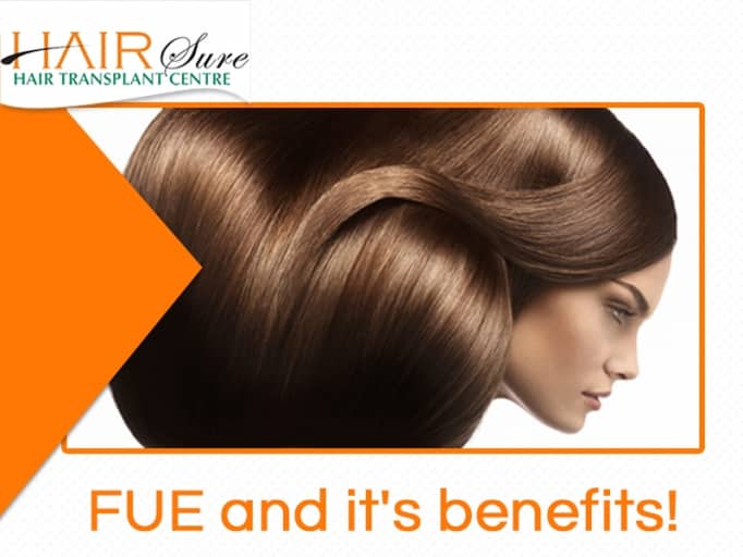 FUE And It's Benefits