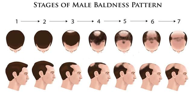 male Pattern Baldness causes