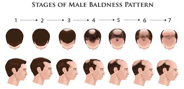 male Pattern Baldness causes