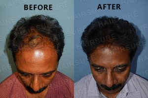 Best hair Treatment in Hyderabad