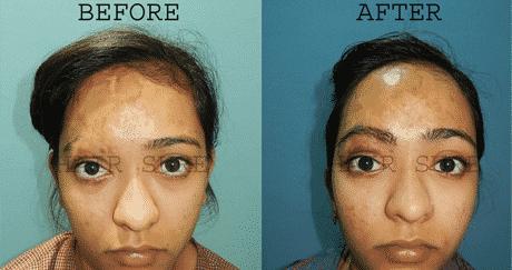 Eyebrow Restoration Treatment