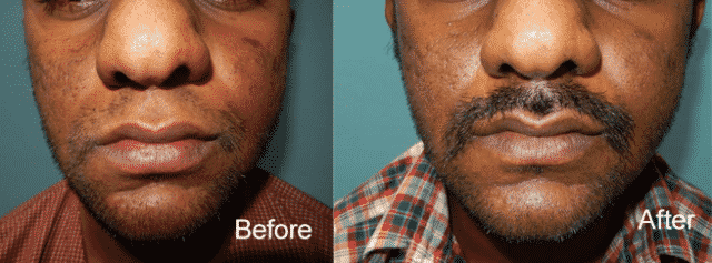 Beard Transplant in Hyderabad