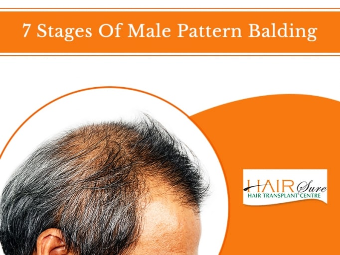Stages Of Male Pattern Balding