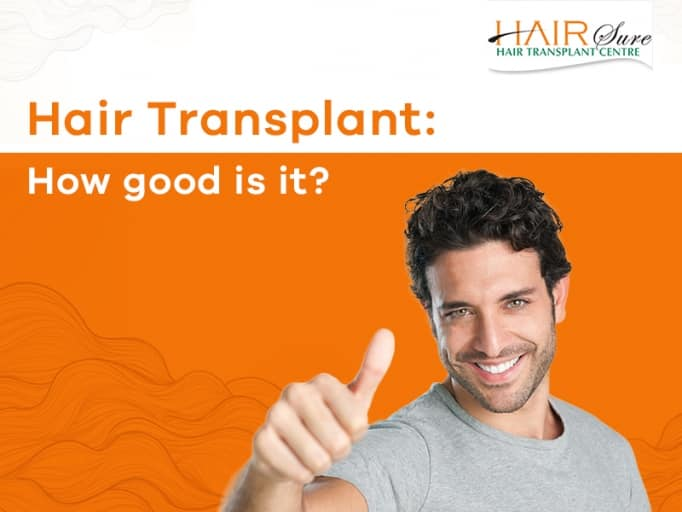 Highest Success Rate in Hair Transplant at Hair sure clinic, One of the best Hair Restoration centre in Hyderabad