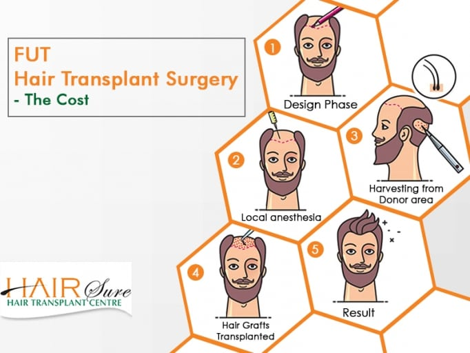 FUT and STRIP Hair Transplant Surgery Cost and Results