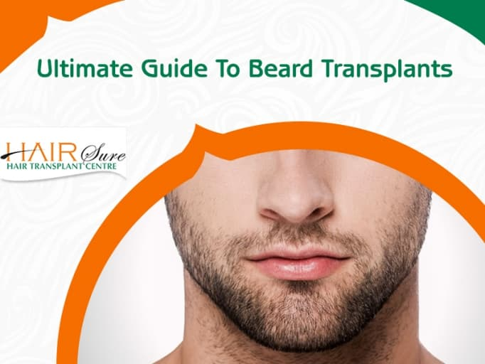 The Ultimate Guide For Beard Hair Transplant