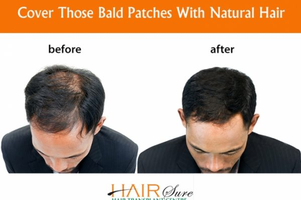 How to Choose Right Surgeon for Hair Transplant Surgery