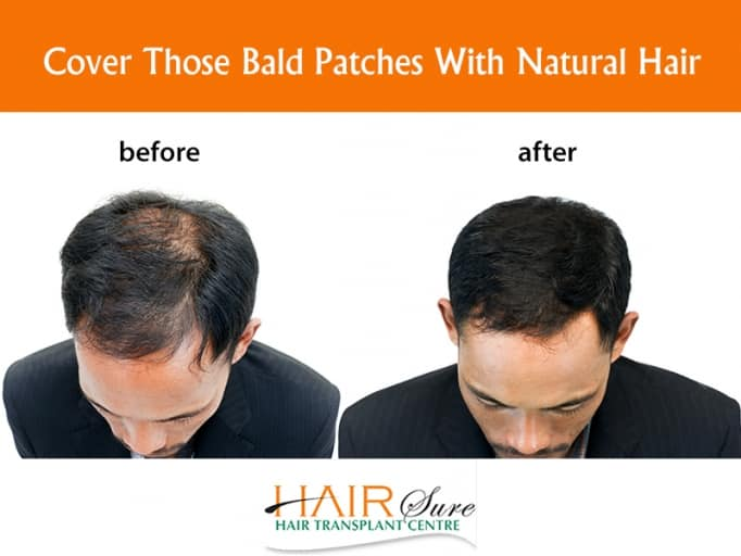 Best bald spots treatment by Hair sure clinic, One of the best Hair Restoration Centre in hyderabad