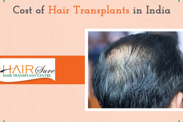 Hair Transplant – The Cost in India
