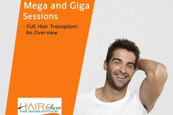 Mega and Giga Sessions – FUE Hair Transplant: An Overview