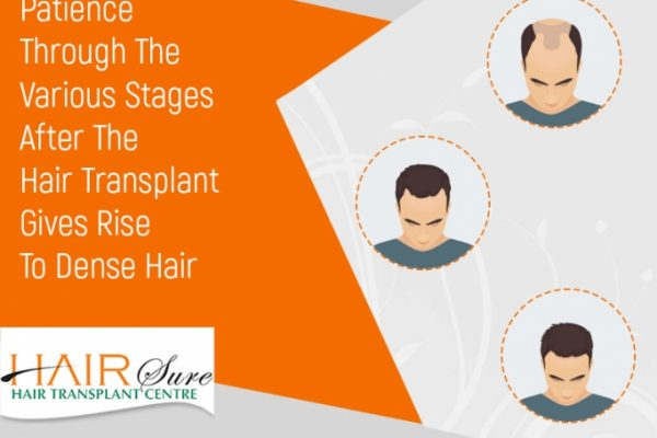 Hair Transplantation Surgery: Recovery Stages