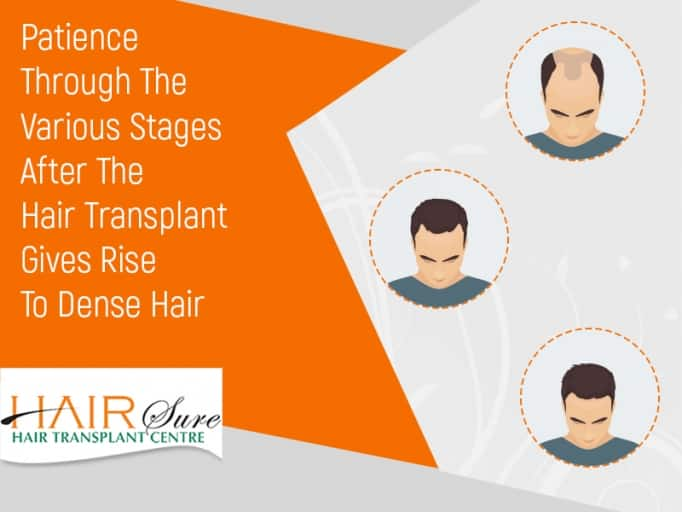 Stages of Recovery after Hair Transplantation