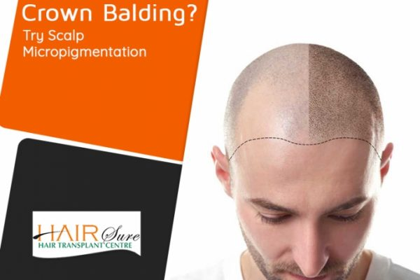 Crown Balding? Here Are Some Reasons Why Scalp Micro-pigmentation Is The Best!