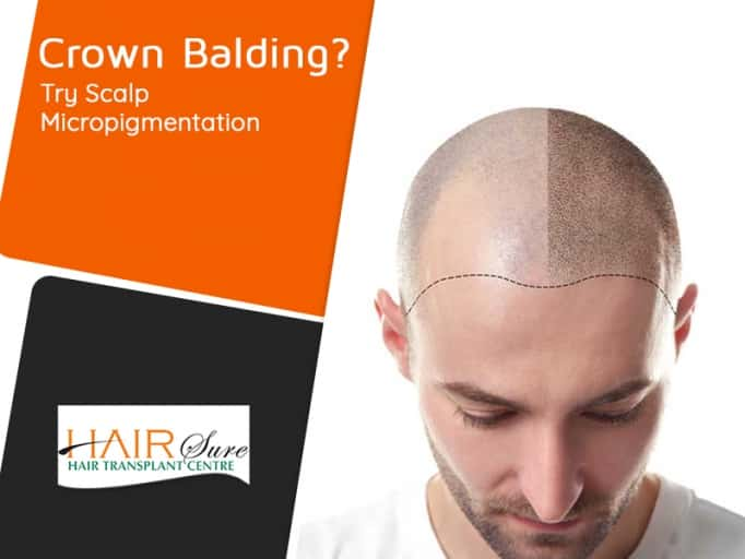 Scalp micropigmentation for crown balding in Hyderabad, trichology clinic near me