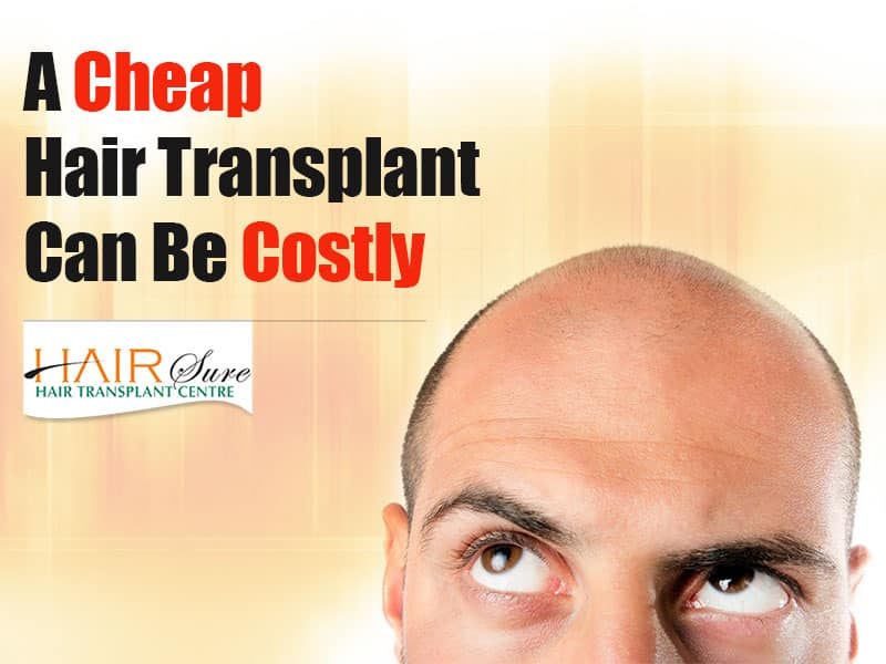 A Cheap Hair Transplant Can Be Costly