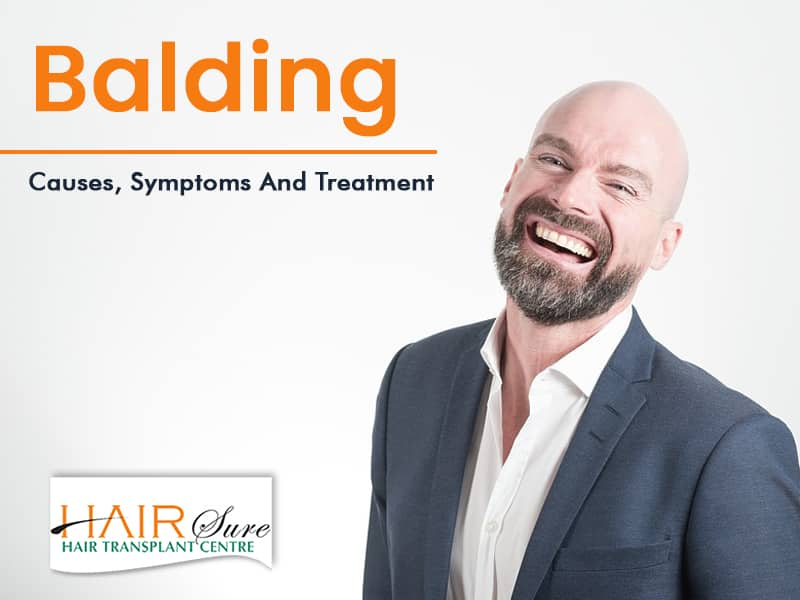 Balding: Causes, Symptoms and Treatment