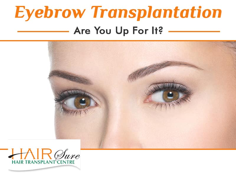 Eyebrow Transplantation-Are You Up For It?