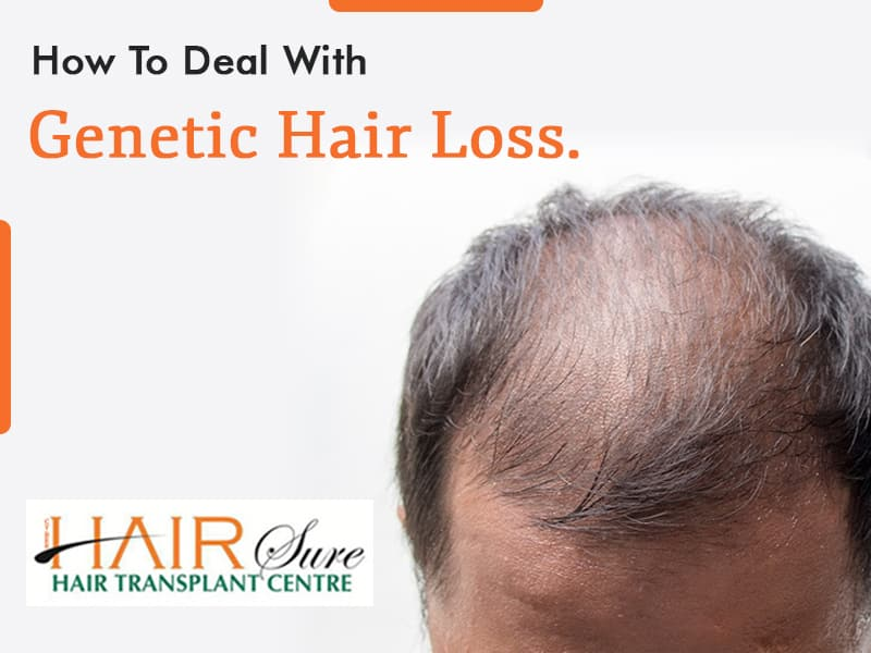 Dealing with Genetic Hair Loss? Here's what you should know.