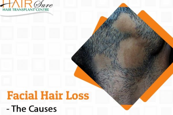 The Causes of Facial Hair loss and its treatment in Hyderabad, Hair and scalp doctor near me