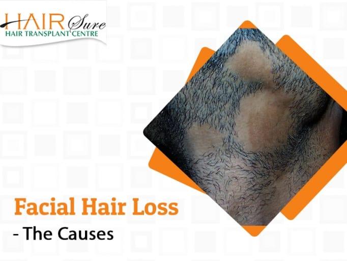 Alopecia Barbae – The Causes