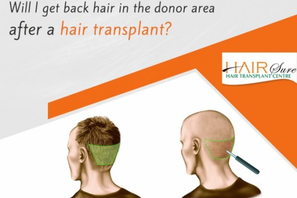 Hair Re-Growth in Donor Area after Hair Transplant Surgery in Hyderabad, Hair care specialist near me