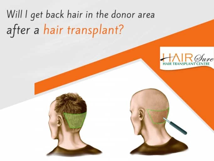 Will The Hair In The Donor Area Return After Hair Transplant? Here's What You Should Know
