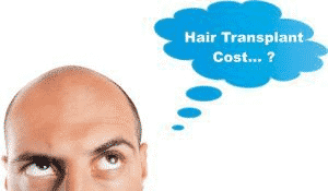 10 Things to Consider Before Having a Hair Transplant3