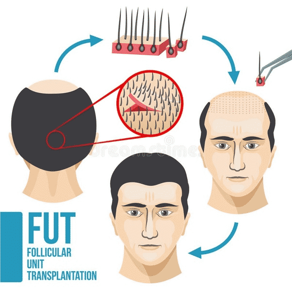 10 Things to Consider Before Having a Hair Transplant4